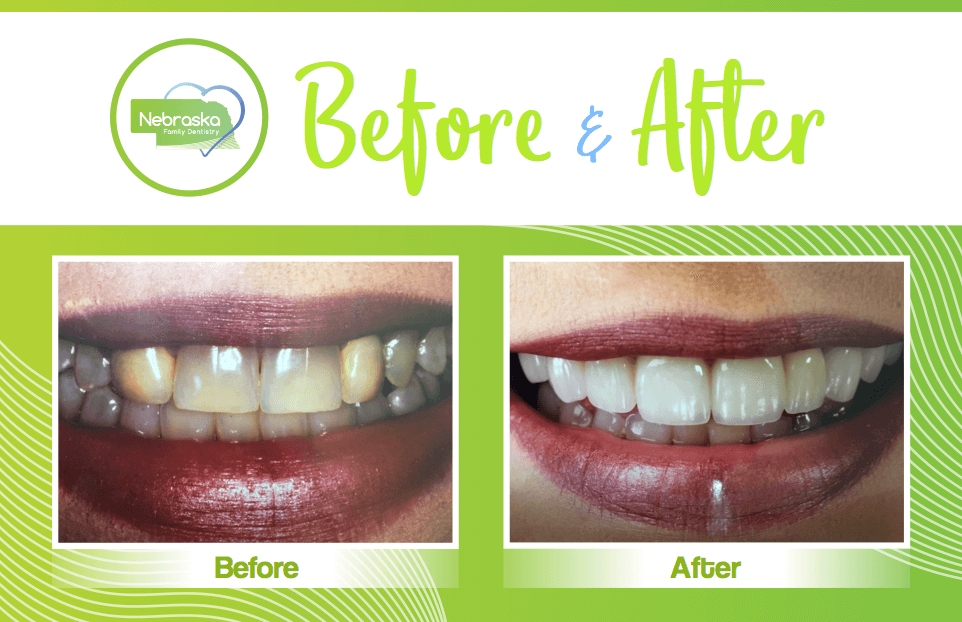 before and after image of smile makeover teeth whitening done by a Lincoln cosmetic dentist in Lincoln, NE
