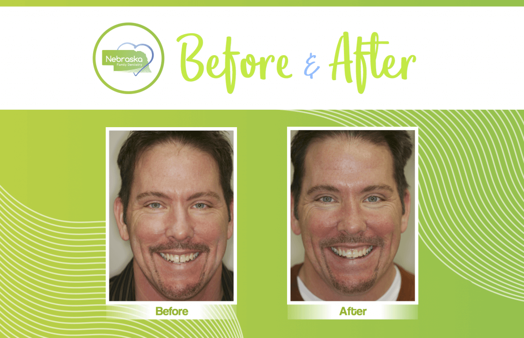 NFD before and after cosmetic dentistry veneers in Lincoln, NE