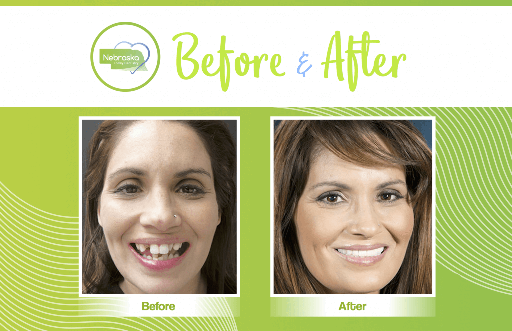 before and after cosmetic dentistry smile repair in Lincoln, NE