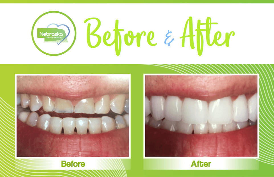 smile makeover of teeth grinding in Lincoln, NE