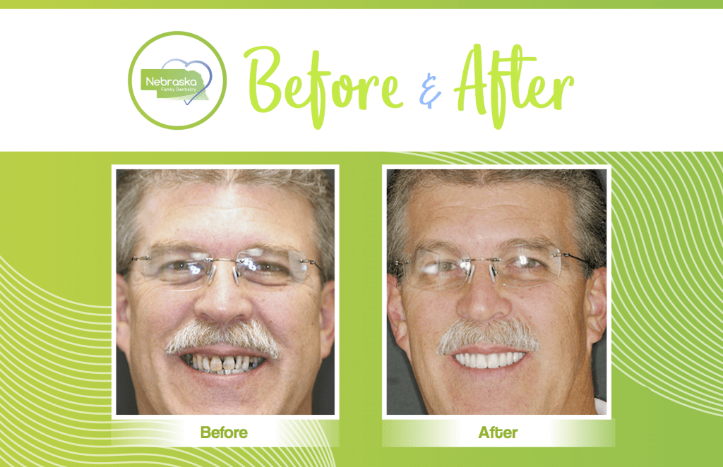 NFD before and afters of cosmetic dentistry veneers in Lincoln, NE