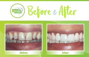 smile makeover showing the repaif of teeth gaps done by a Lincoln cosmetic dentist in Lincoln, NE