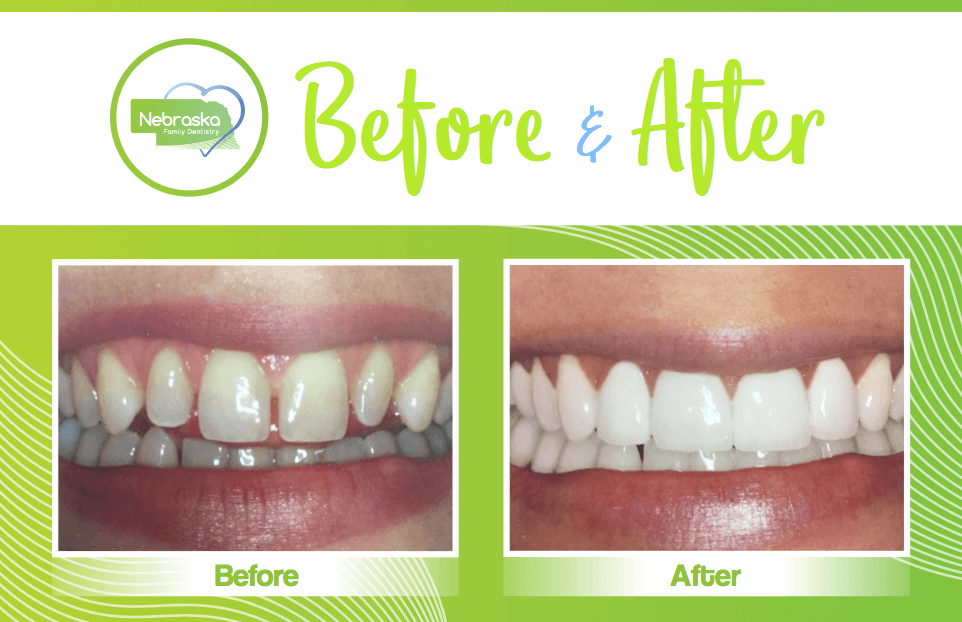 Before and After of dental veneers from gentle dentist in Lincoln, NE