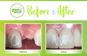 smile makeover showing a tooth implant by a Lincoln cosmetic dentist in Lincoln, NE