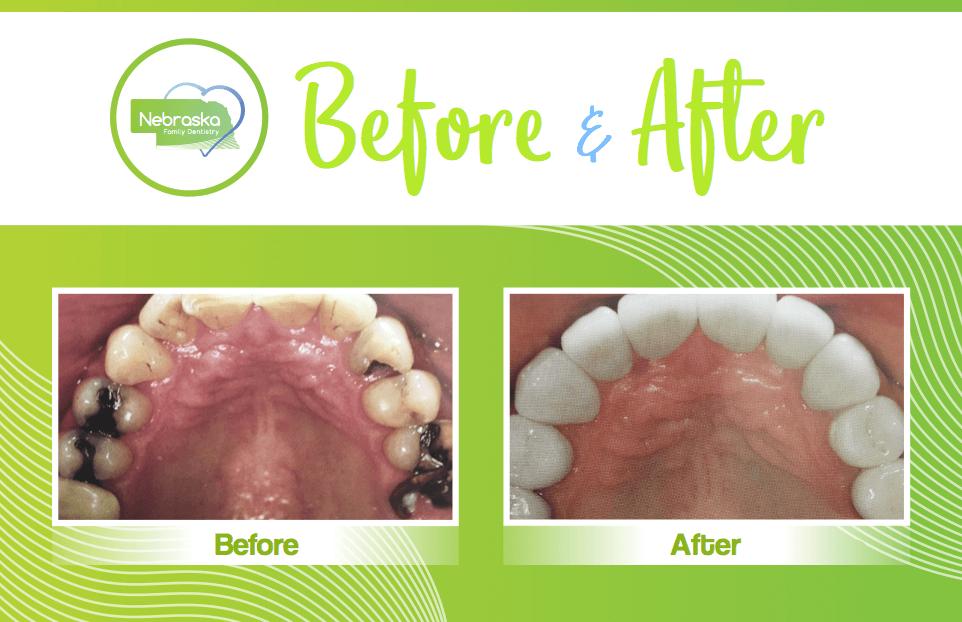 smile makeover showing replacement of white fillings with tooth colored fillings by a Lincoln cosmetic dentist in Lincoln, NE