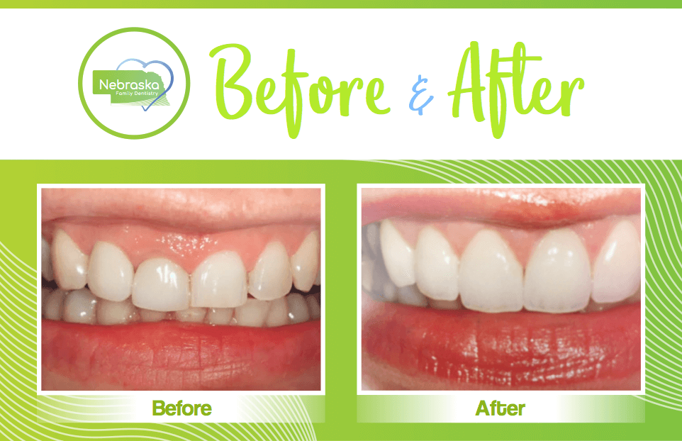 smile makeover showing repair of a smile with too mcuh gum by a Lincoln cosmetic dentist in Lincoln, NE