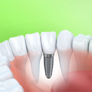 cosmetic dentistry procedure of dental implants in Lincoln, NE