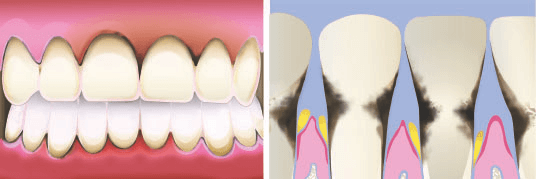 periodontal disease Inflammation of the teeth illustration from dentist in Lincoln, NE