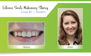 image of a smile makeover by a Lincoln cosmetic dentist in Lincoln, NE