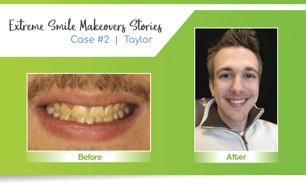 smile makeover case 2 completed by a Lincoln cosmetic dentist in Lincoln, NE at Nebraska Family Dentistry