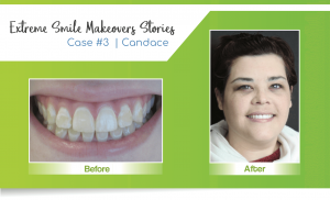 smile makeover case 3 completed by a Lincoln cosmetic dentist in Lincoln, NE at Nebraska Family Dentistry