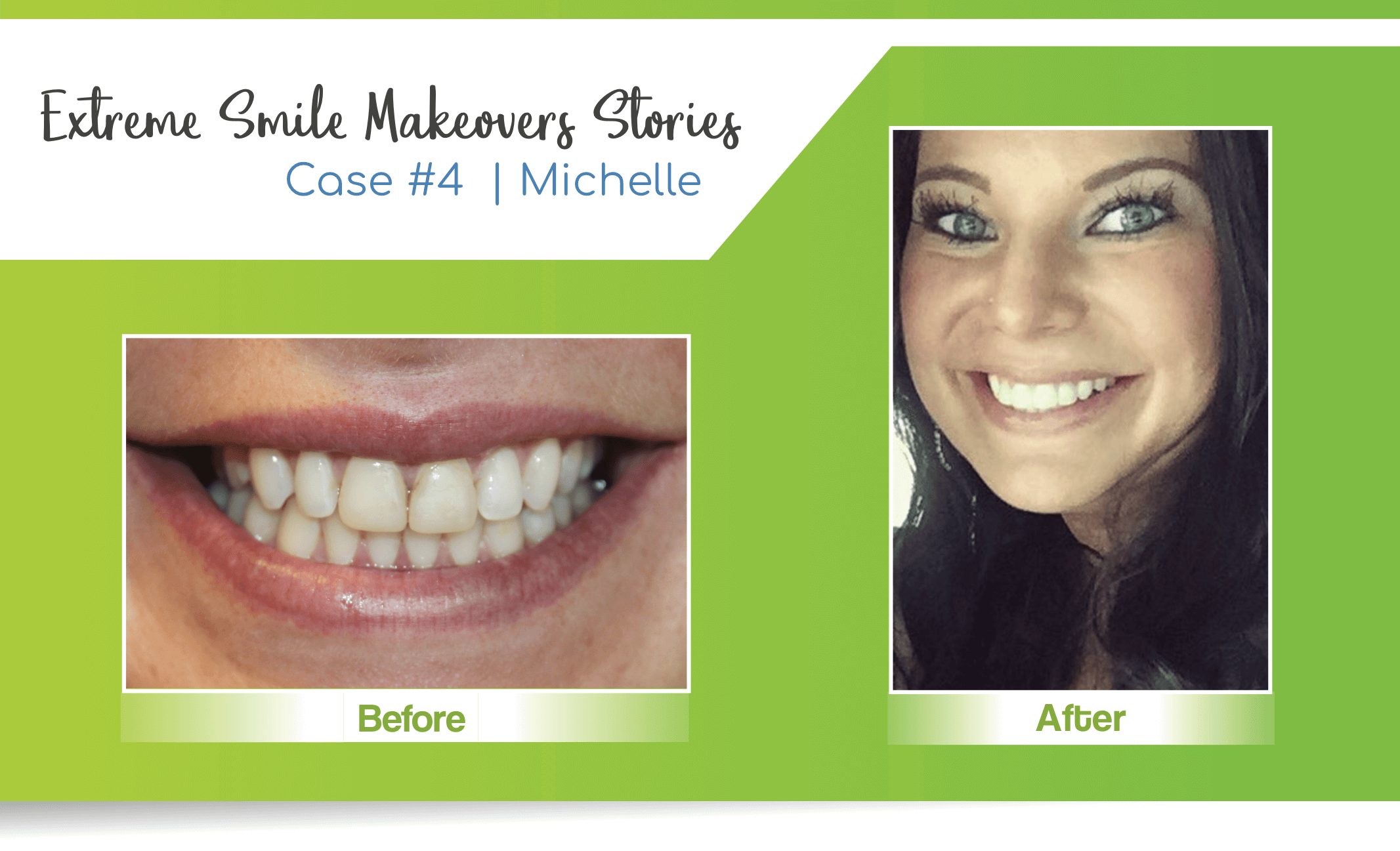 Before and after image of professional teeth whitening done by Nebraska Family Dentistry in Lincoln, NE