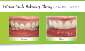 smile makeover case 5 done by a Lincoln cosmetic dentist in Lincoln, NE at Nebraska Family Dentistry
