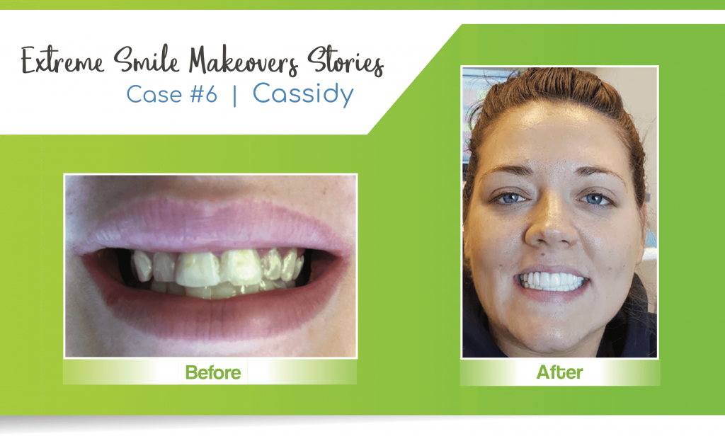 smile makeover case #6 in Lincoln, NE at Nebraska Family Dentistry completed by a Licoln cosmetic dentist