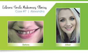 smile makeover case #7 finished by a Lincoln cosmetic dentist in Lincoln, NE at Nebraska Family Dentistry