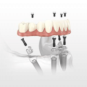 denture repair alternative
