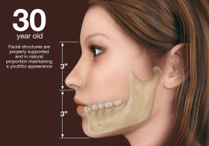 30 year old with jaw bone implant bridge illustration in Lincoln, NE