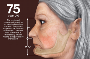 75 year old with jaw bone loss implant bridge illustration
