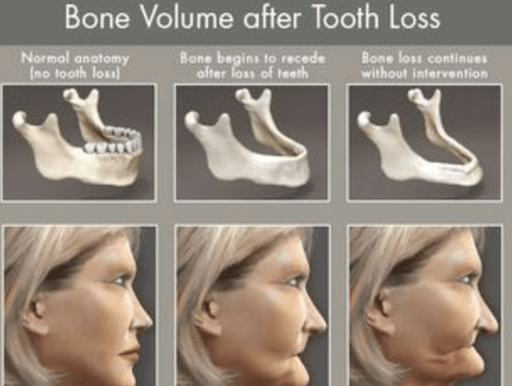 images showing bone volume after tooth loss and the importance of dental care for seniors in Lincoln, NE