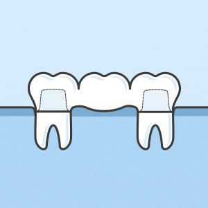 after tooth extraction : dental bridge