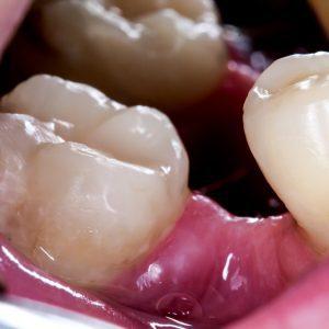missing teeth, a rheumatoid arthritis causer