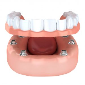 tooth extraction replacement option using dental implants