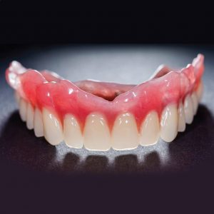 tooth extraction replacement with perfect dentures in Lincoln, NE