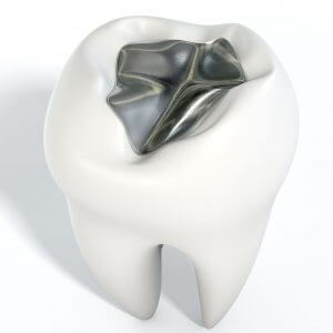 Image from biological dentist in Lincoln, NE showing a tooth with mercury fillings Lincoln, NE