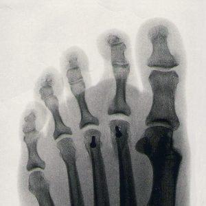 a feet xray of rheumatoid arthritis