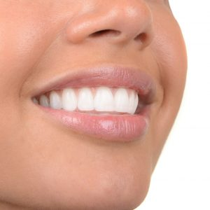 professional teeth whitening patient in Lincoln, NE