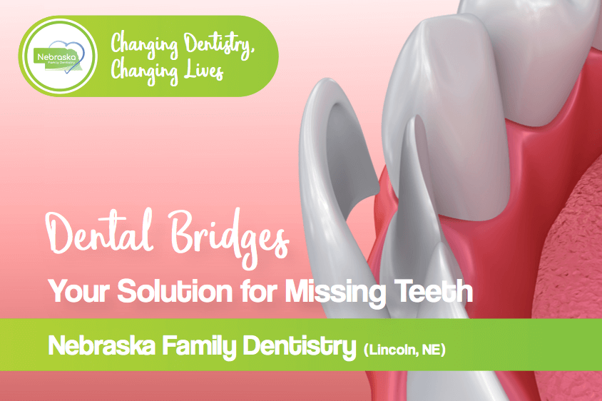dental bridges banner for the this page from dentists in Lincoln, NE