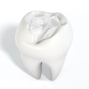 Dental Pain, Toothache Management in Lincoln, NE of Dental White Filling