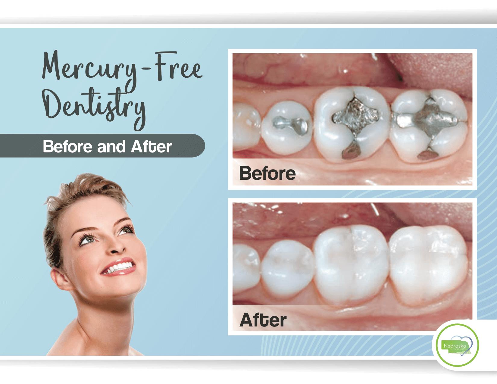 white dental fillings banner