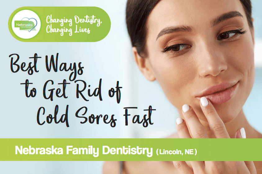how to stop a cold sore fast
