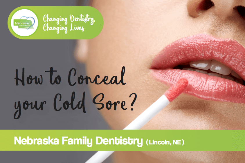 How to conceal your cold sore?