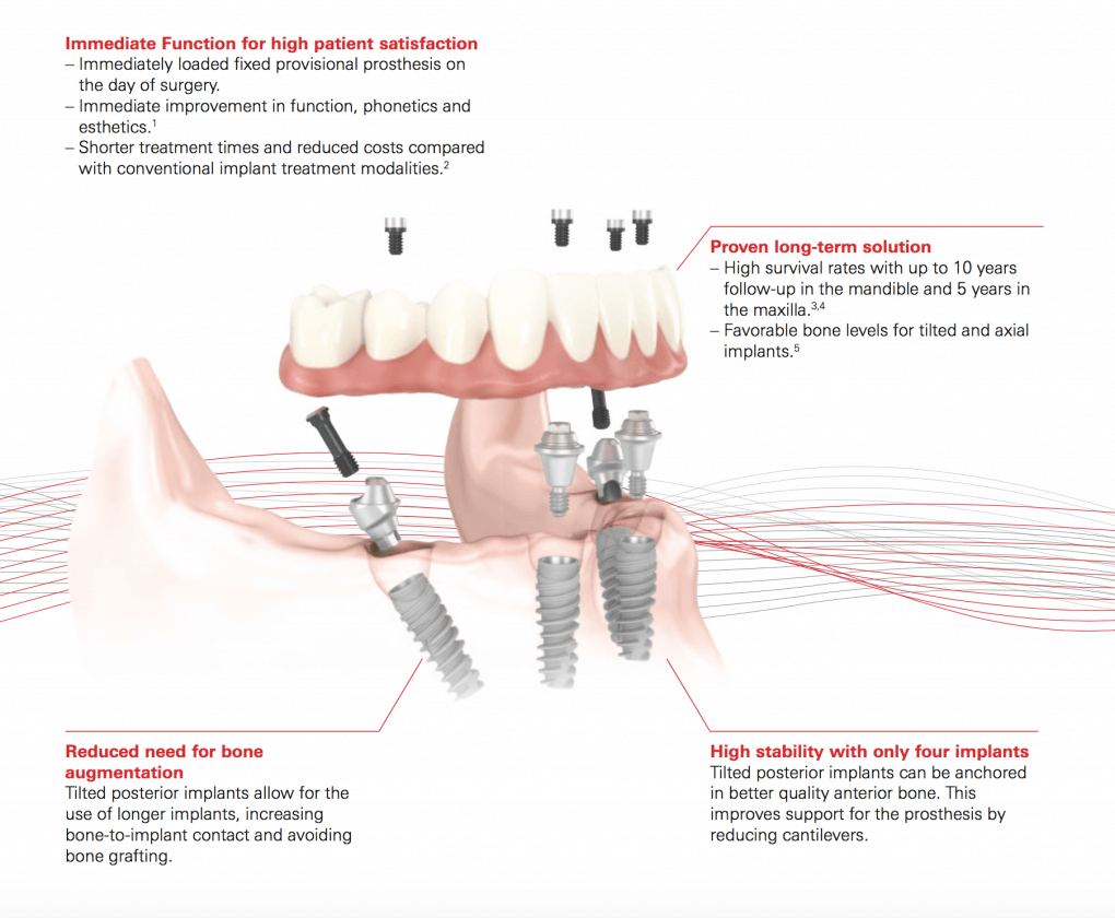 implant bridge illustration from cosmetic dentist in Lincoln, NE