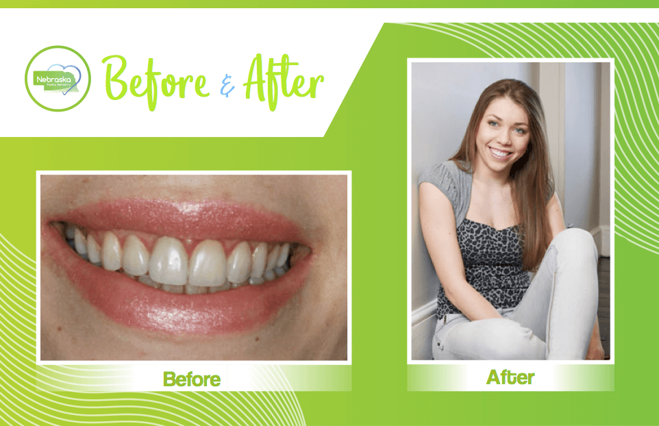 Before and after image of professional teeth whitening in Lincoln, NE after patient searched for the best teeth whitening near me
