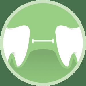 dental bridges illustration by dentists in Lincoln, NE