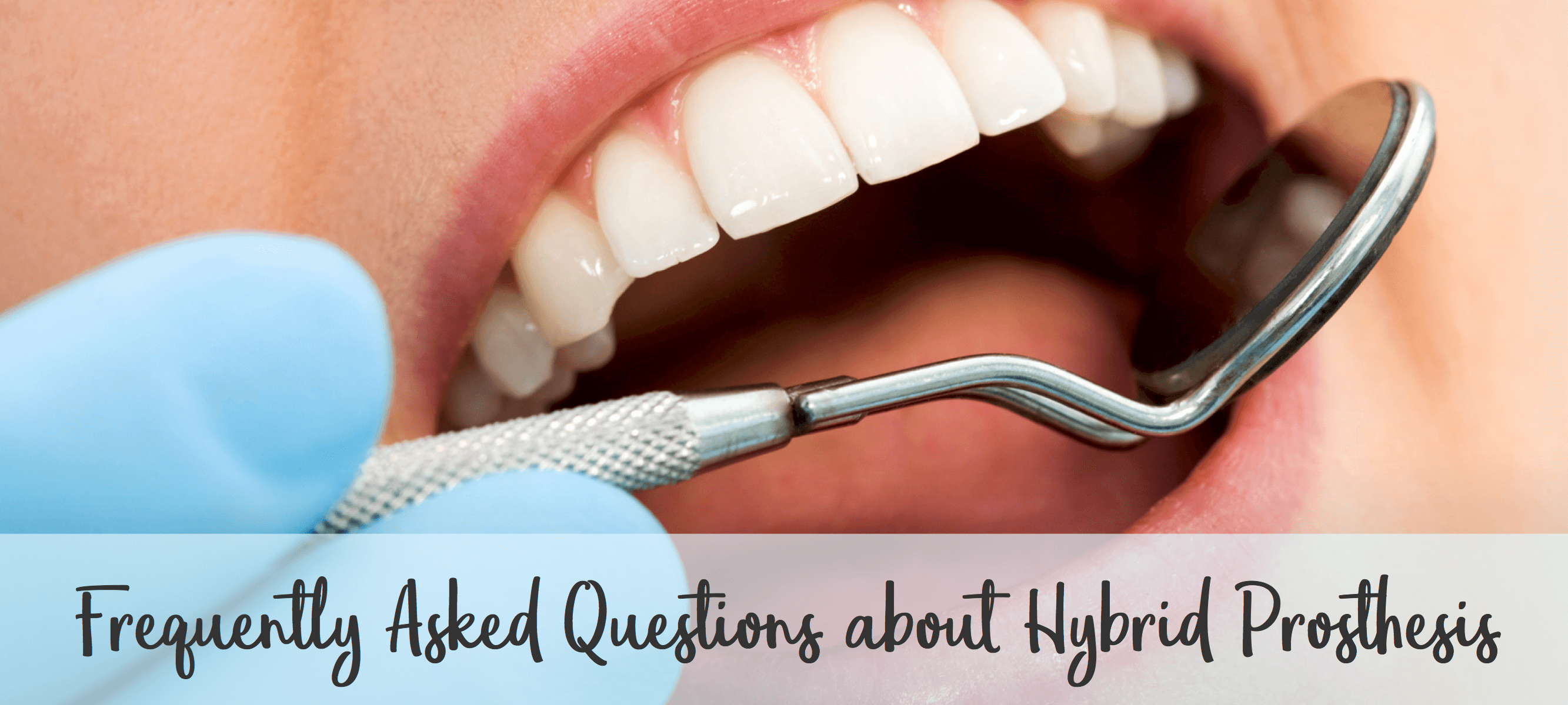 solutions for hybrid prosthesis as a implant bridge option in Lincoln, NE