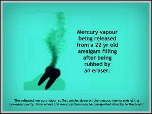 Amalgam-mercury- silver dental fillings vapor
