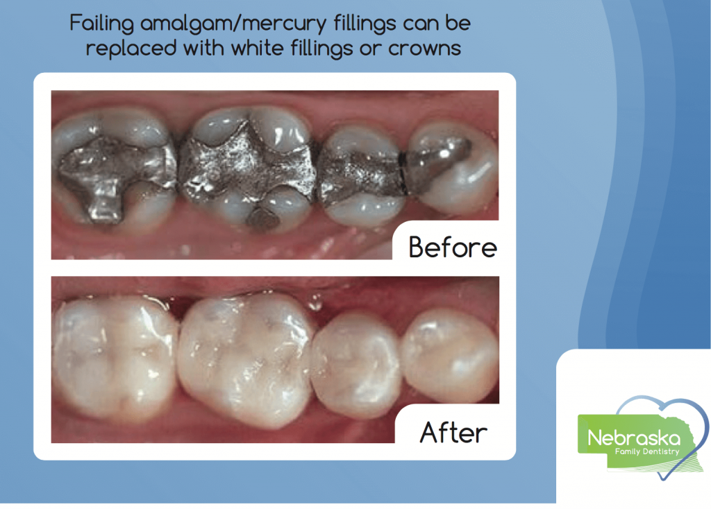 Amalgam-mercury- silver dental fillings before and after pictures