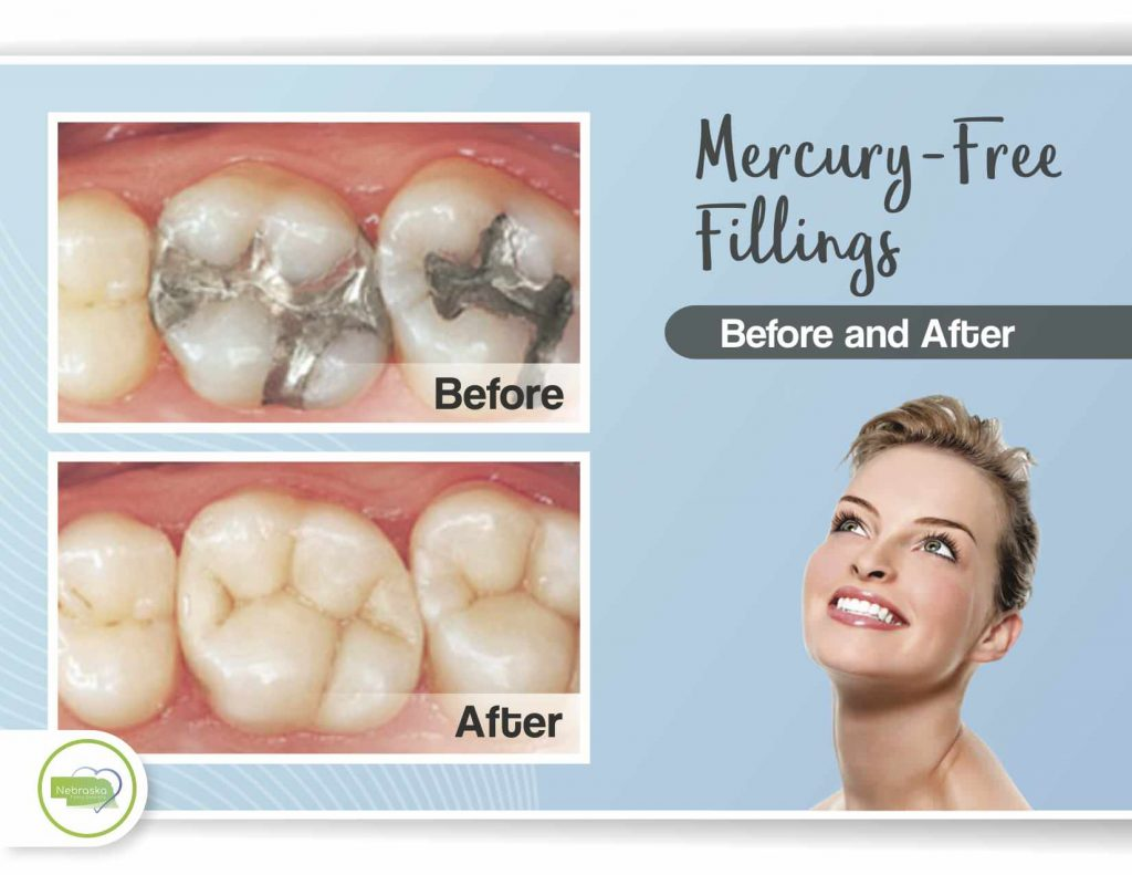 Amalgam-mercury- silver dental fillings before and after