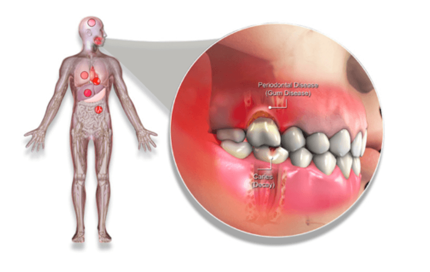 Image showing Periodontal Disease and Overall Health. Discuss how they are connected with your biological dentist in Lincoln, NE, Dr. Kathryn Alderman.