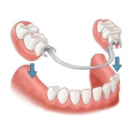 image of removable partial dentures in Lincoln, NE is also an option for replacing missing teeth