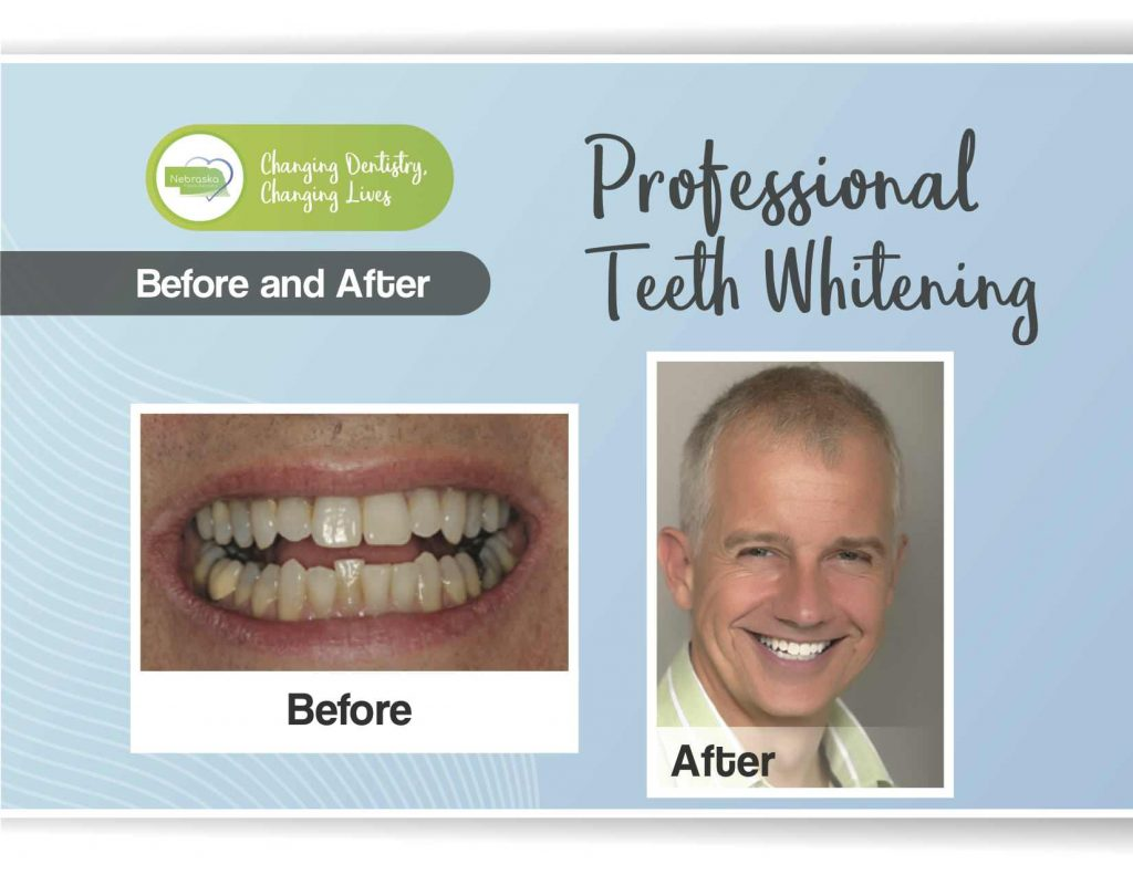 """Image of a banner displaying professional teeth whitening """"before and after."""""""