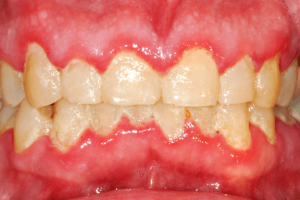 Example of gingivitis showing that dental care dental care for seniors in Lincoln, NE in those 50+ years of age is very important