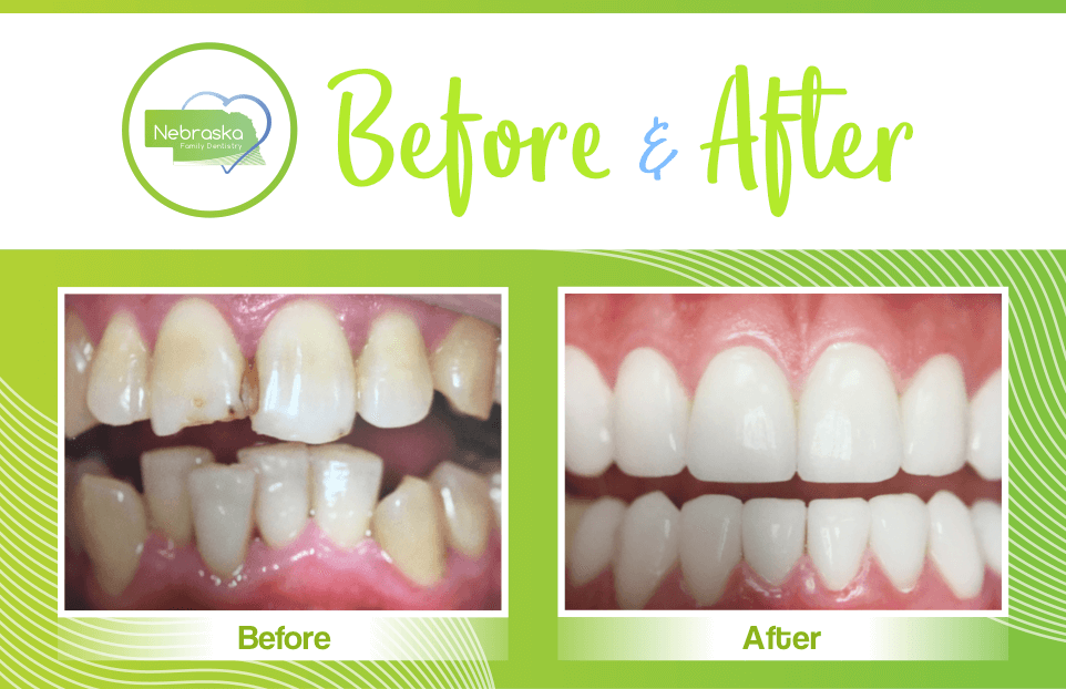 Before and after for misaligned teeth