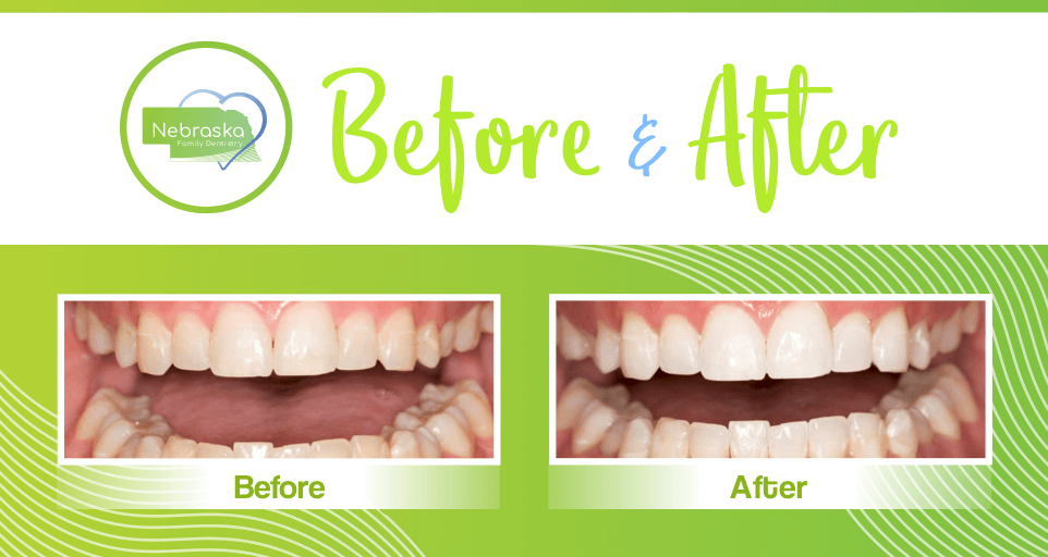 """Teeth whitening """"before and after"""" example from a patient in Lincoln, NE."""