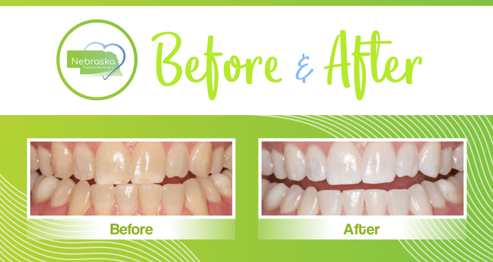 Image of teeth whitening before and after from Nebraska Family Dentistry.