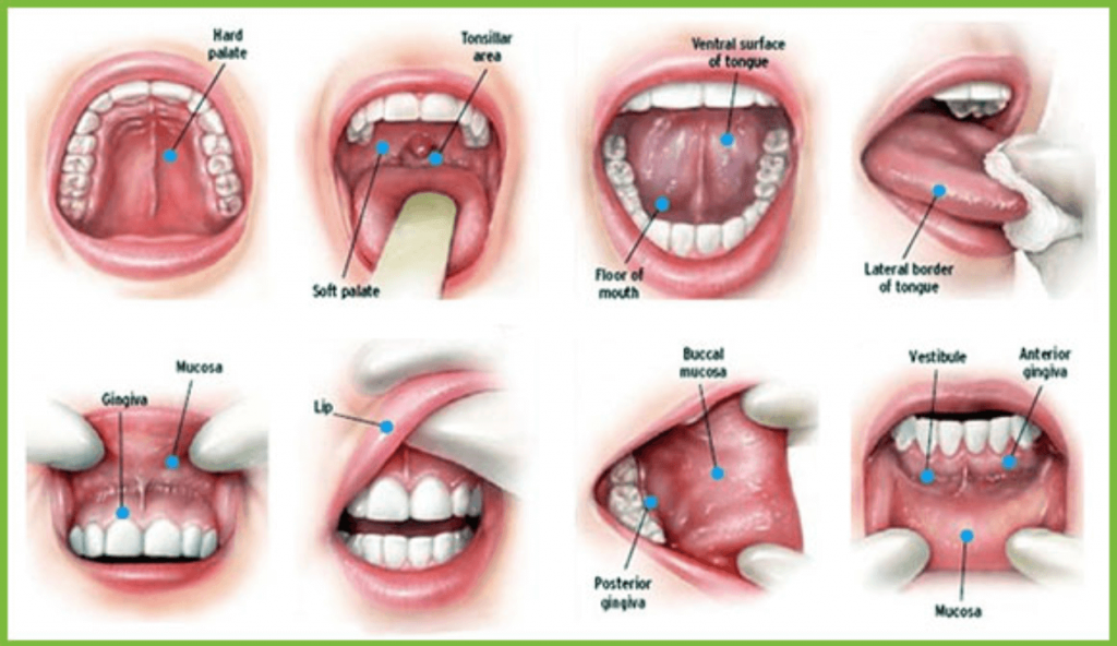 Non healing Mouth Sores examples about dental emergencies for seniors in Lincoln, NE